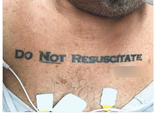 Man Wearing 'Do Not Resuscitate' tattoo Faints, Leaves Doctors on Ethical Dilemma